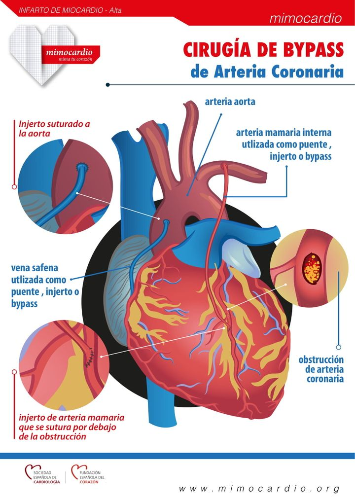 "Fuente: <a href=""https://mimocardio.org/images/2019/02/27/Cirugia-Bypass-Arteria-Coronaria.jpg"" target=""_blank"" rel=""noopener noreferrer"">mimocardio.org</a>"