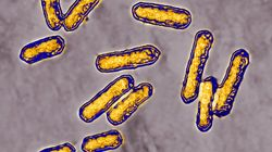 Bajan los nuevos casos de listeriosis, pero la polémica se