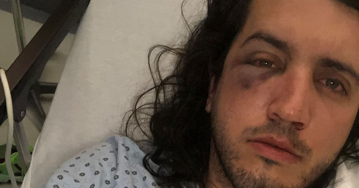 Markantoine Lynch-Boisvert And Alex James Taboureau Injured In Alleged Homophobic Attack - HuffPost Canada