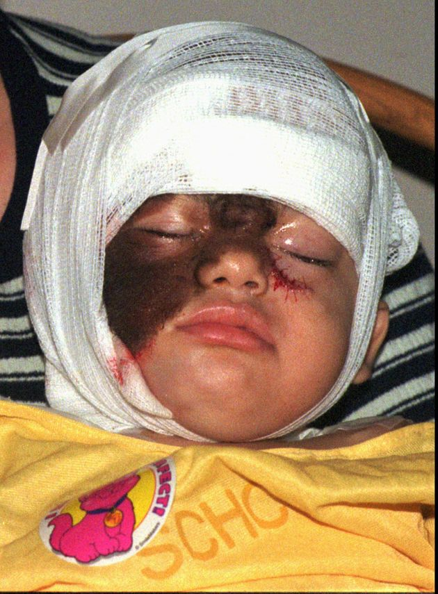 Abys DeJesus, 2, crys after facial surgery at St. Christopher's Hospital in Philadelphia August, 27,...
