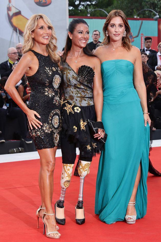 Con protesi e tacco a spillo. Giusy Versace incanta sul red carpet a