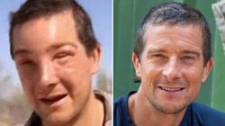 Bear Grylls Needs Medical Treatment After Suffering Severe Reaction To Bee