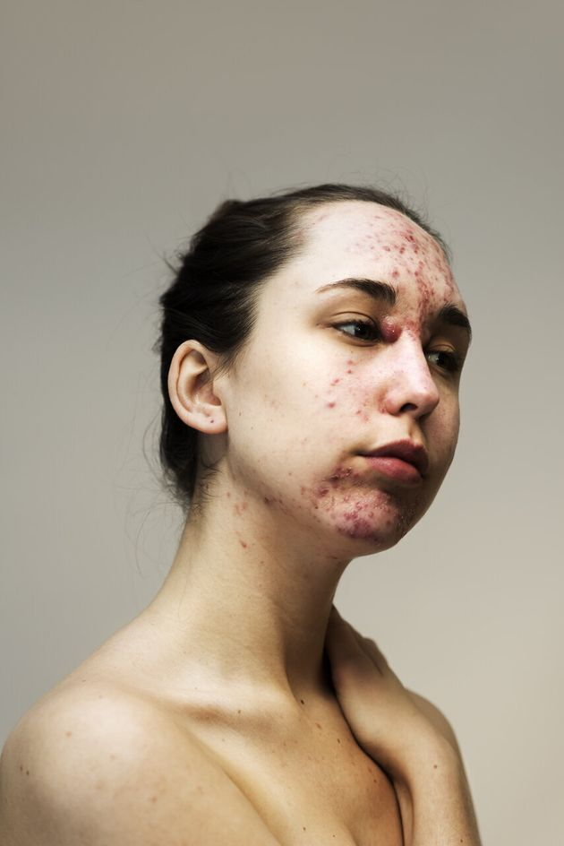This Powerful Photo Series Celebrates 'Real Skin' In All Its