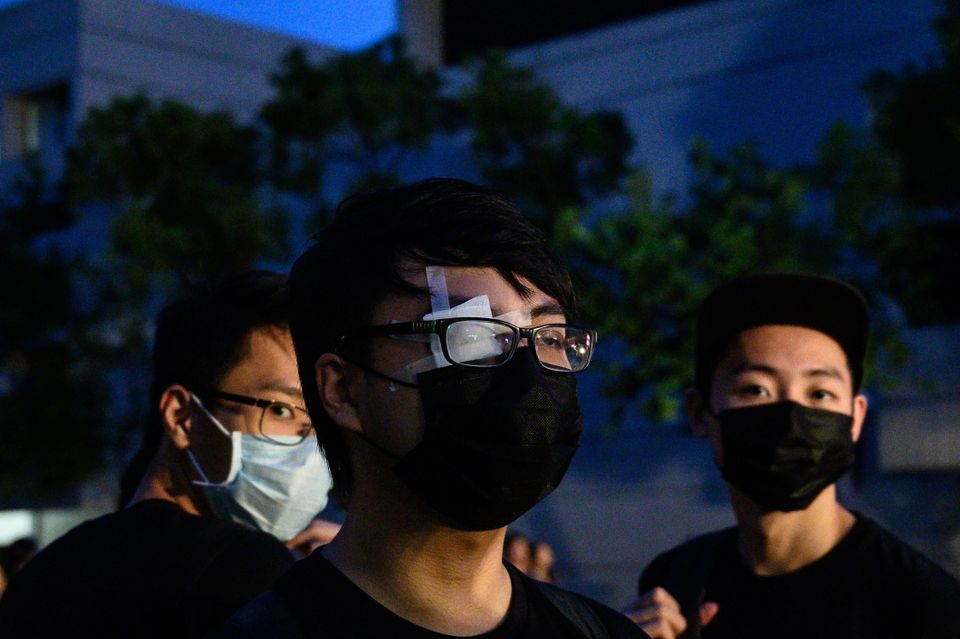 TOPSHOT - A student covers his right eye, after a woman suffered an eye injury which demonstrators blamed...