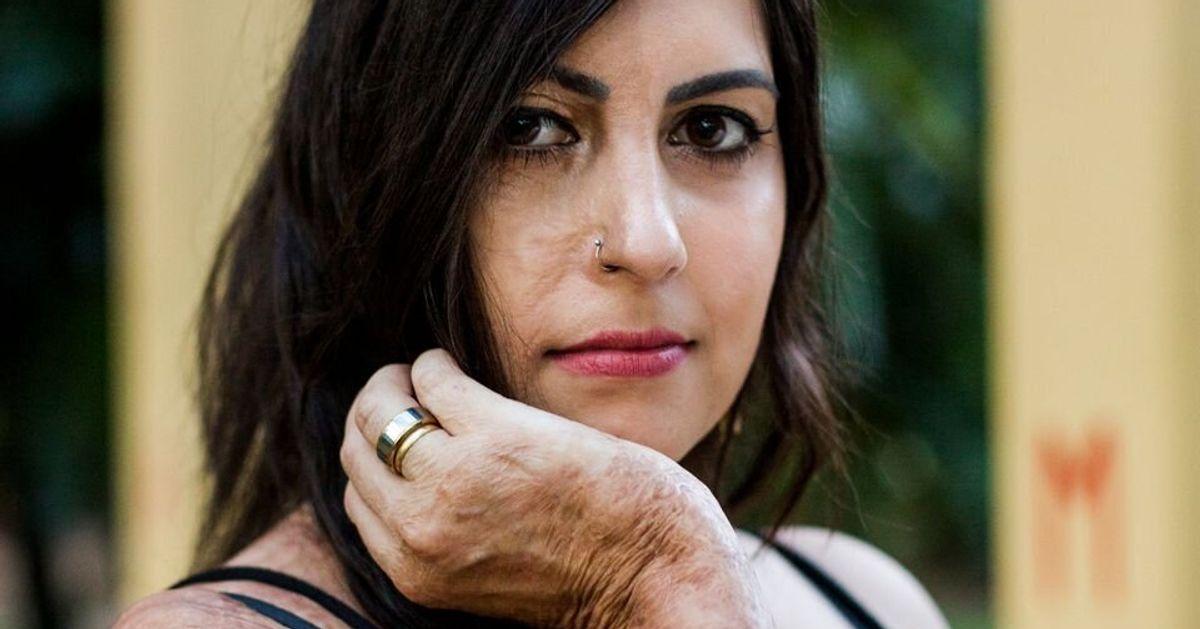 'Fiquei viva para lutar por justiça', diz Barbara Penna, que sobreviveu a tentativa de feminicídio