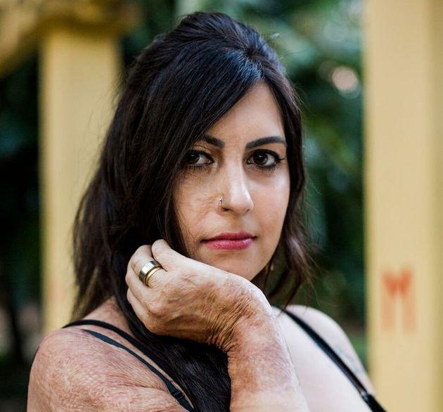 Há seis anos, Bárbara sobreviveu a uma tentativa de feminicídio em Porto Alegre