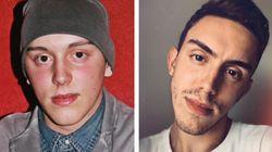 Mattia sconfigge il cancro a 22 anni: