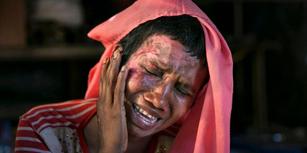 COX'S BAZAR, BANGLADESH - DECEMBER 02: Mumtaz Begum, 30, becomes emotional as she touches the wounds...