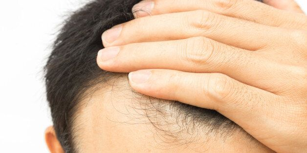 Closeup young man serious hair loss problem for hair loss concept or shampoo product, health care and