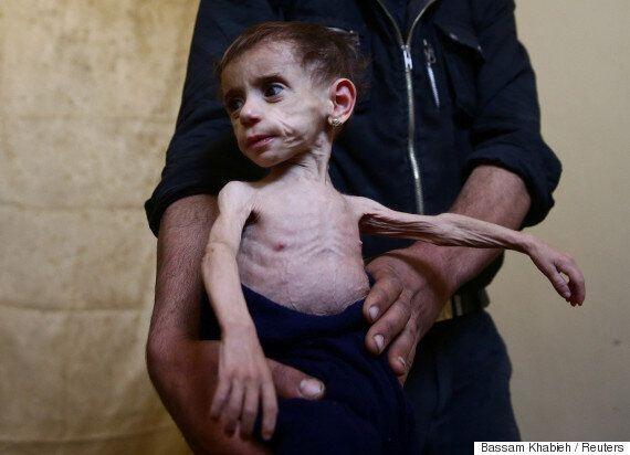 포위된 시리아인들은 생존을 위해 쓰레기를 먹고