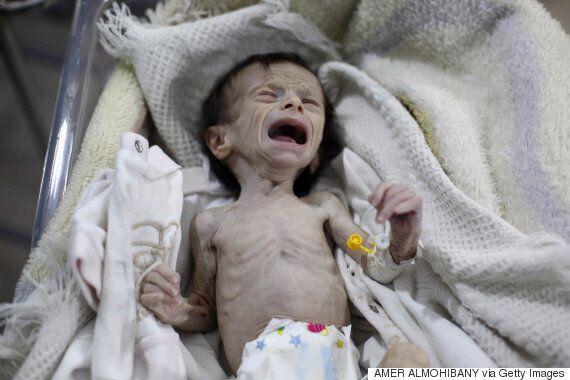 이 아기의 모습은 시리아의 참상을 고스란히