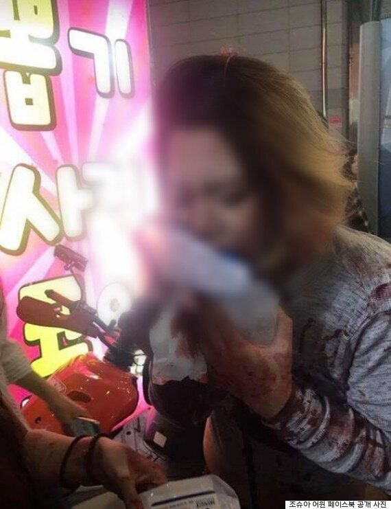 부산 클럽에서 인도네시아 여성이 직원에게 폭행당하는 사건이