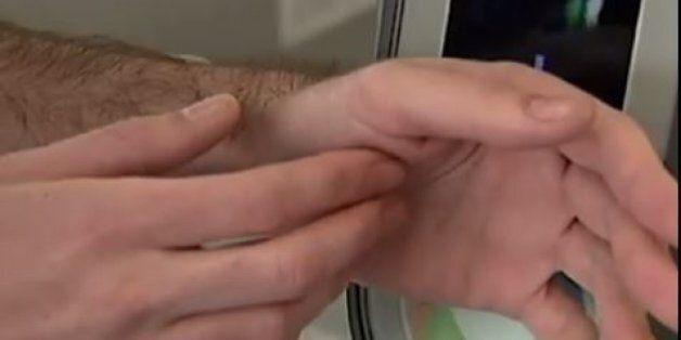 이 남자는 교통카드 칩을 피부에 심었다