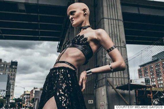 희귀 유전병 '외배엽형성이상증' 앓는 모델이 패션계를 놀라게