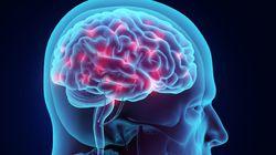 뇌 전기자극, 기억력 향상에