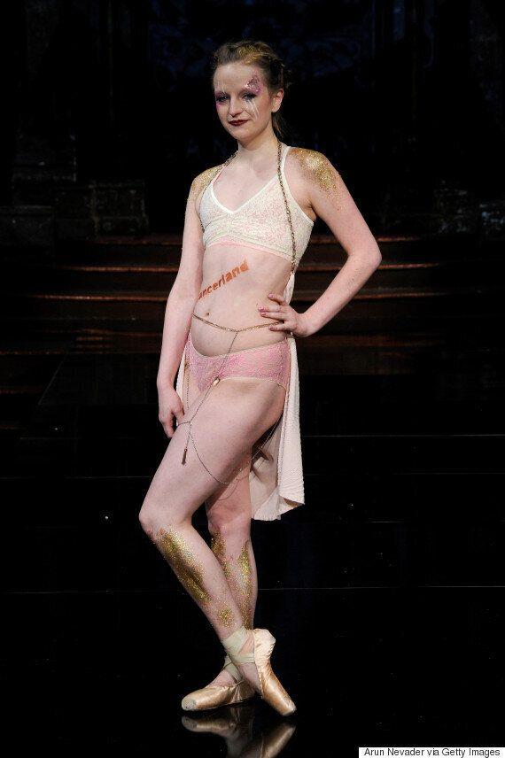 유방암 생존자들이 뉴욕 패션위크서 수술 자국을 자랑스럽게
