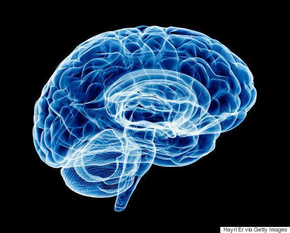 혁신을 원하지 않는 뇌도 발전할 가능성이