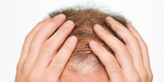 Balding, to become