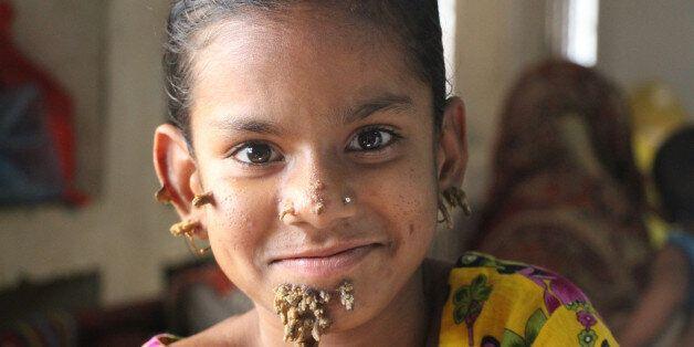 DHAKA, BANGLADESH - JANUARY 30: Shahana, 10, suffers from Epidermodysplasia verruciformis, also known...