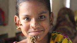 '나무인간 병' 첫 여성 의심환자가