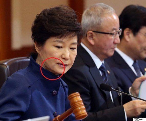특검, '김영재 의원' 전격적으로