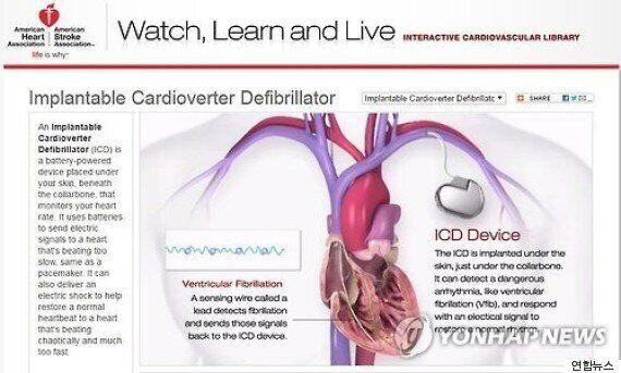'심박동률회복' 속도가 중년 이후 사망을 예고하는 척도가 될 수