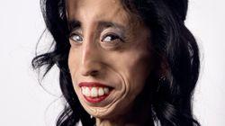 '가장 못생긴 여자'가 조롱에 대응하는