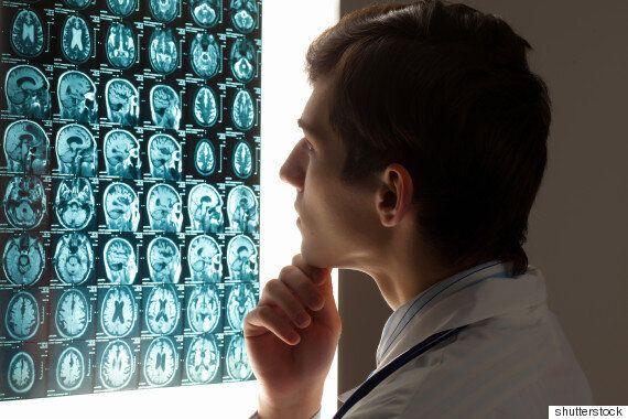 뇌의 건강을 유지하는 중요한 요소, '인지적 비축분'이란