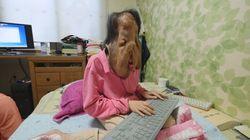 신경섬유종으로 고생하는 이 여성에게 12시간 만에 2억 원의 성금이