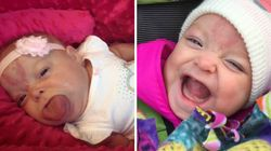성인 크기의 혀를 갖고 태어난 아기가 마침내 미소를