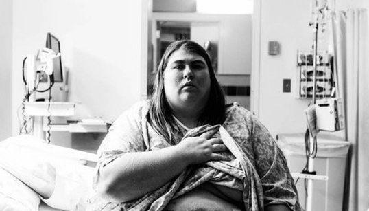 폭식증에 걸린 사진작가는 자신을 찍으며 고통을
