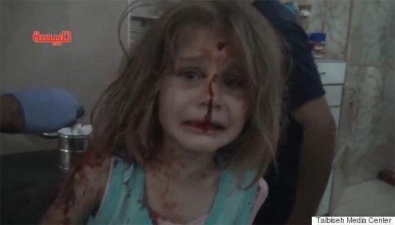 폭격당한 시리아 소녀는 애타게 아빠를