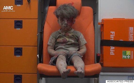 시리아의 비극은 계속되고 있다는 걸 보여주는 5살 아이의 사진 한
