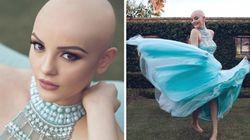 17살의 암투병 소녀는 '가발 없는 공주'가