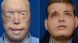 이 남자에게 얼굴을 이식하는 역대급 성형 수술의 과정이