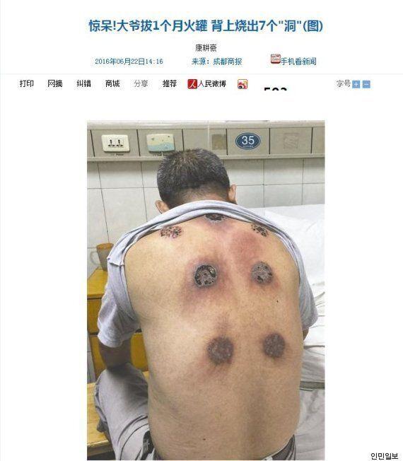 이 남성은 부항 치료를 받다가 등에 구멍이 생겼다