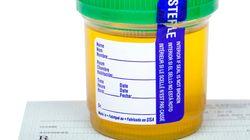 세재혜택 조건으로 부자들도 마약 복용 테스트를 하자는 법안을 발의한