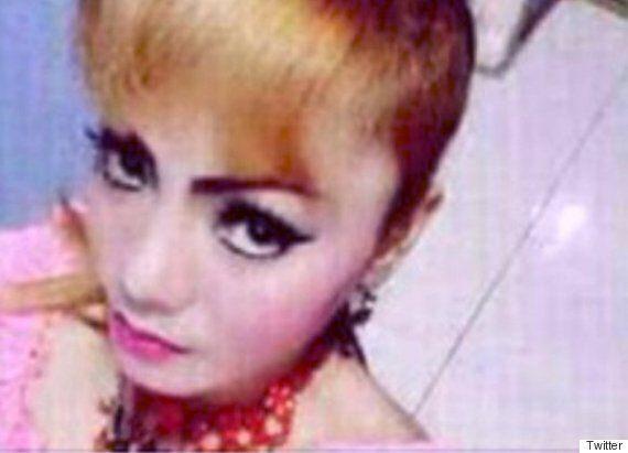 공연 중 코브라에 물린 인도네시아의 가수가