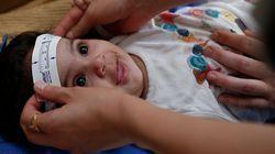 지카 감염시 여성 8주간 피임, 남성 6개월 콘돔