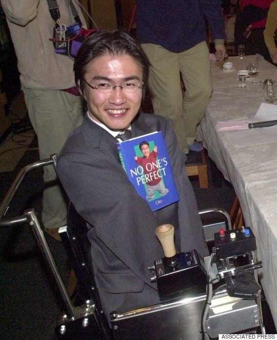 '오체불만족'의 저자 오토타케 히로타다의 불륜
