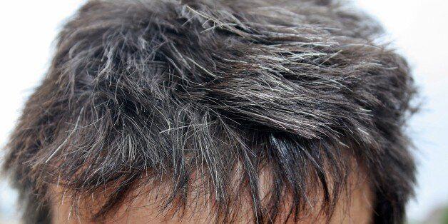 흰머리를 결정하는 특정 유전자가