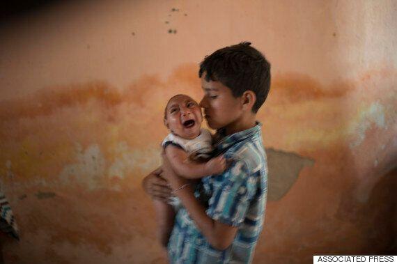 소두증 바이러스 전 세계 확산 : 한국도 법정감염볌