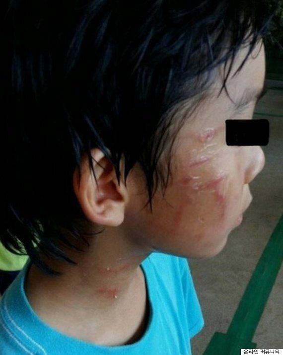 김병지, '피해 학생이 먼저 때렸다'며 소송