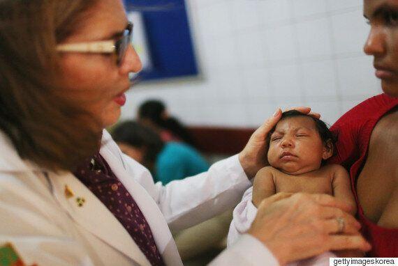 브라질에서 소두증 의심사례가 4천건을