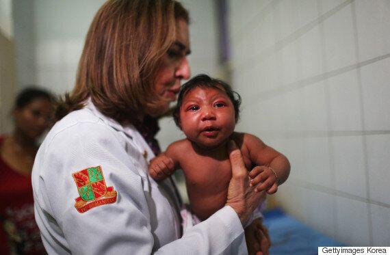 임신부가 알아야 할 소두증 유발 '지카 바이러스'에 대한 필수
