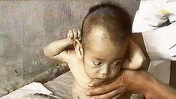 북한 어린이 2만5000명이 '즉각적인 치료'가 필요한 영양실조
