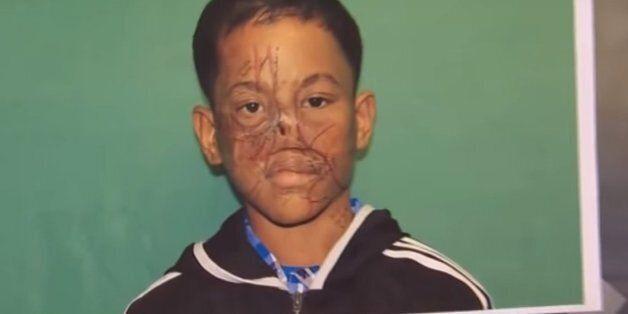 한 십대 소년의 붕괴된 코를 재건해준