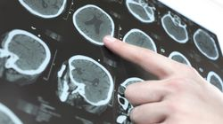 '주7일 근무' 뒤 뇌출혈 사망은 업무상 재해가
