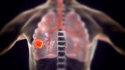 Desarrollan un test que detecta el cáncer de pulmón cuatro años antes que las técnicas