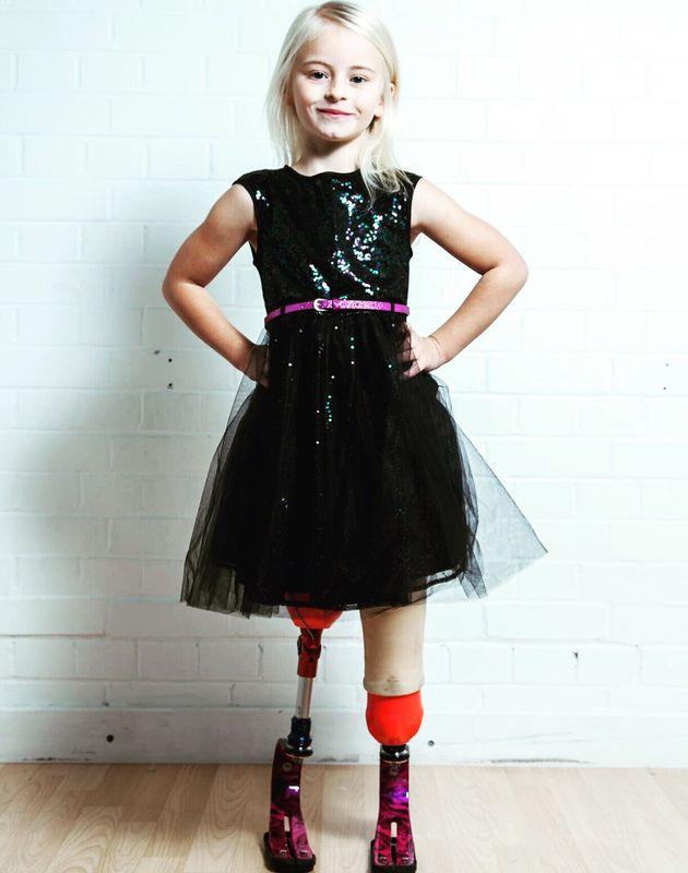 Κοριτσάκι με προσθετικά πόδια μαγεύει τη Νέα Υόρκη κάνοντας πασαρέλα στην Εβδομάδα